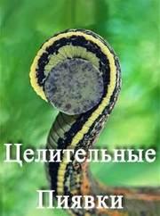 Пиявки Украина